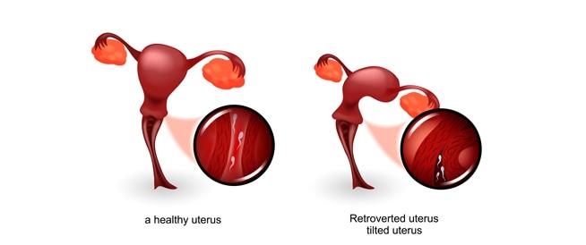 أسباب الرحم المقلوب وعلى ماذا يؤثر؟
