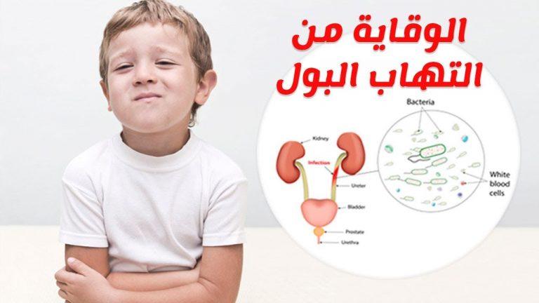 أكثر من 9 أعراض التهاب مجرى البول عند الرضع