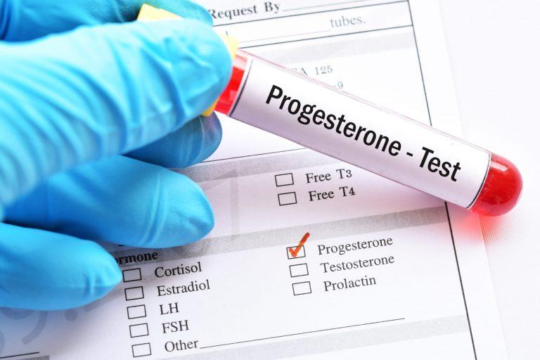 ما هو تحليل progesterone؟