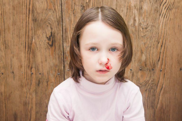 اسباب نزيف الانف عند الاطفال وهل هو خطير؟